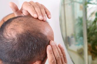 Going Bald (Man's Greatest Fear)